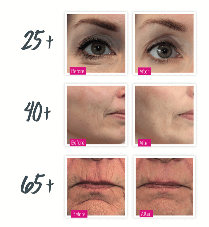 Dermatude Meta Therapy Before and After Results