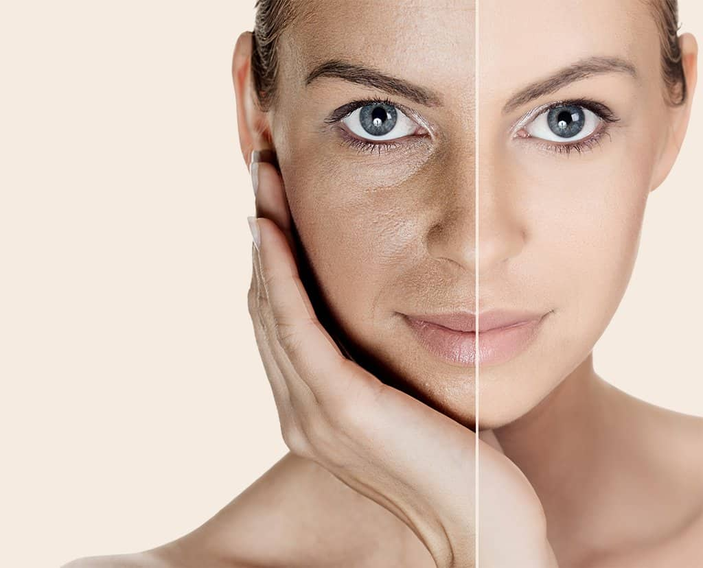 Solutions for FINE LINES, LARGE PORES, EARLY SIGNS OF AGING