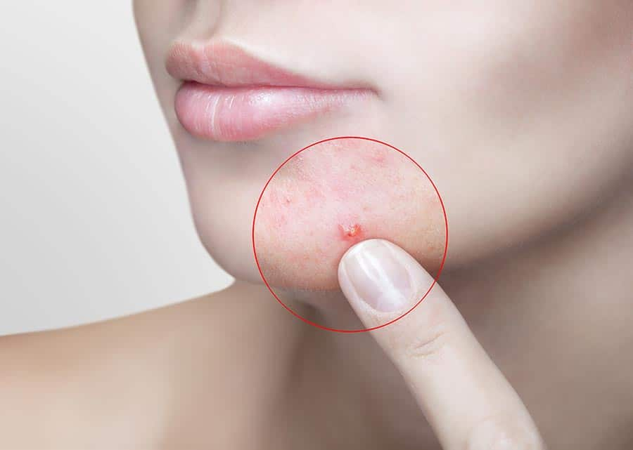Pimples & blemishes
